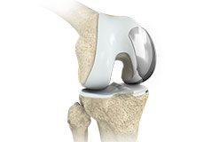 Partial (uni) Knee Replacement